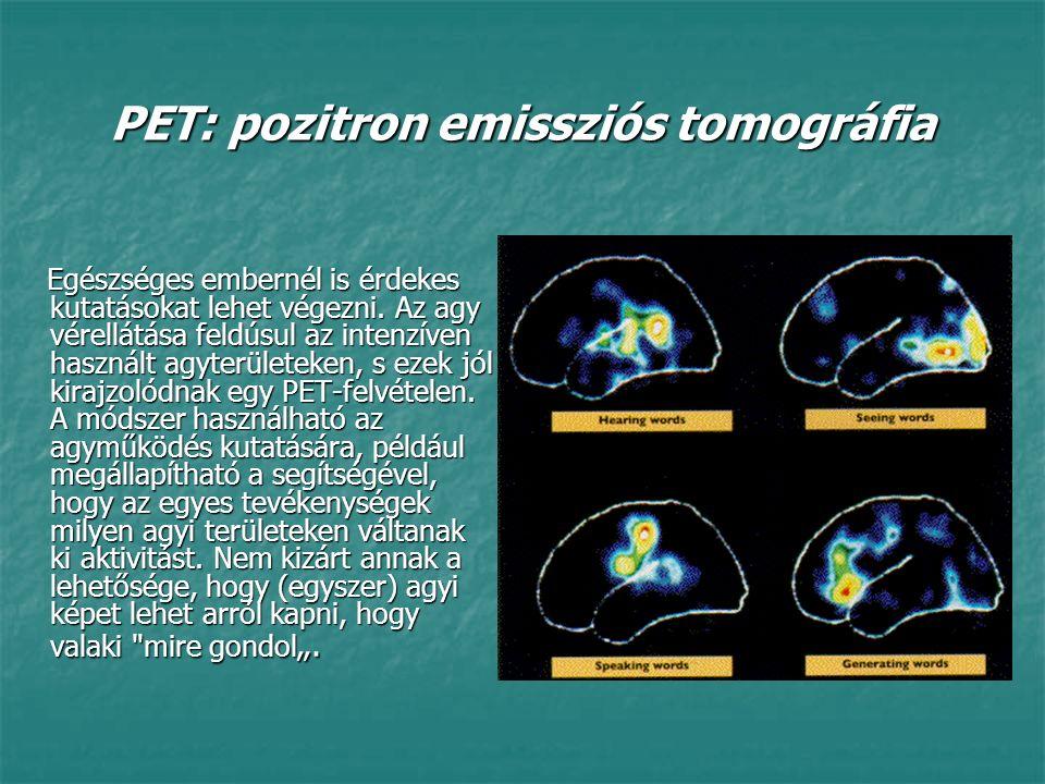PET: pozitron emissziós tomográfia Egészséges embernél is érdekes kutatásokat lehet végezni. Az agy vérellátása feldúsul az intenzíven használt agyter