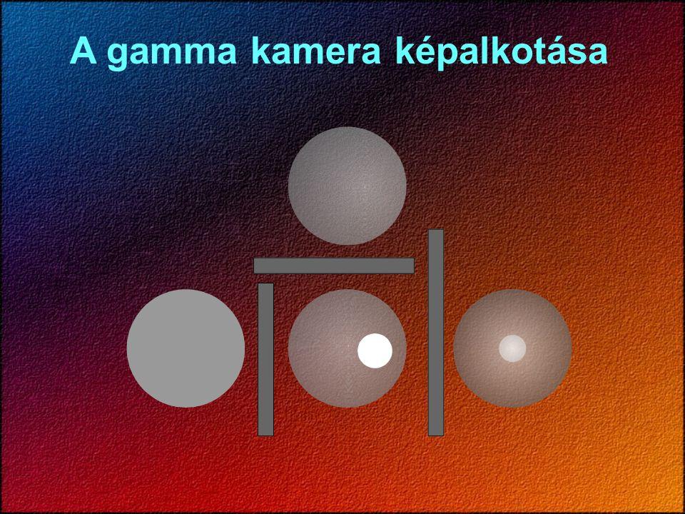 A gamma kamera képalkotása