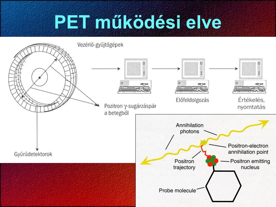 PET működési elve