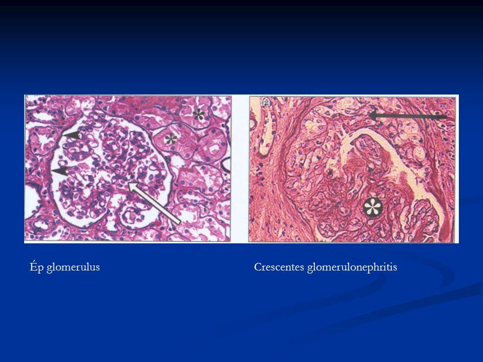 Ép glomerulusCrescentes glomerulonephritis