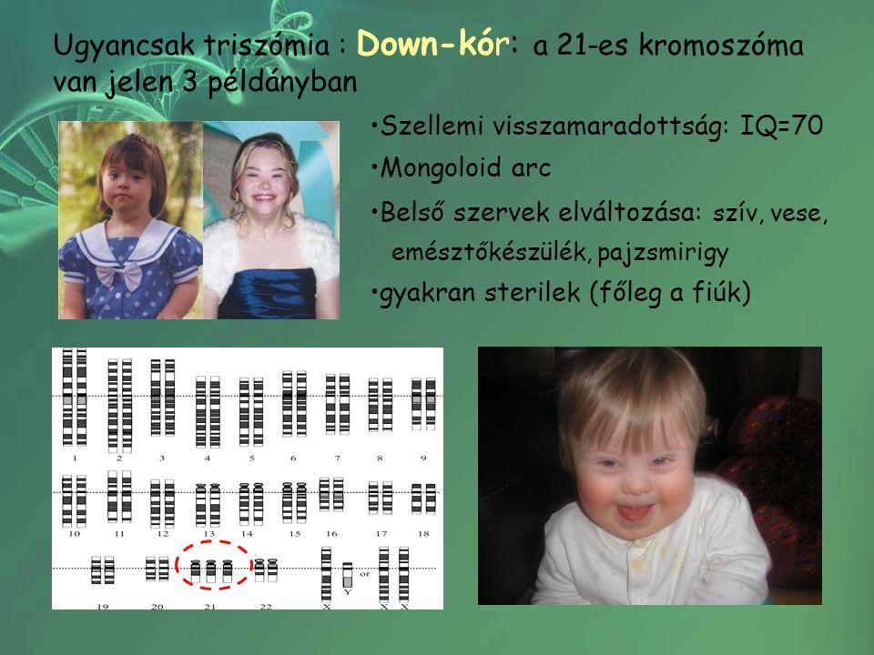 Ugyancsak triszómia : Down-kór: a 21-es kromoszóma van jelen 3 példányban Szellemi visszamaradottság: IQ=70 Mongoloid arc Belső szervek elváltozása: szív, vese, emésztőkészülék, pajzsmirigy gyakran sterilek (főleg a fiúk)