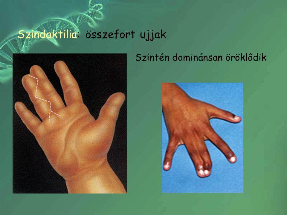 Szindaktilia: összefort ujjak Szintén dominánsan öröklődik
