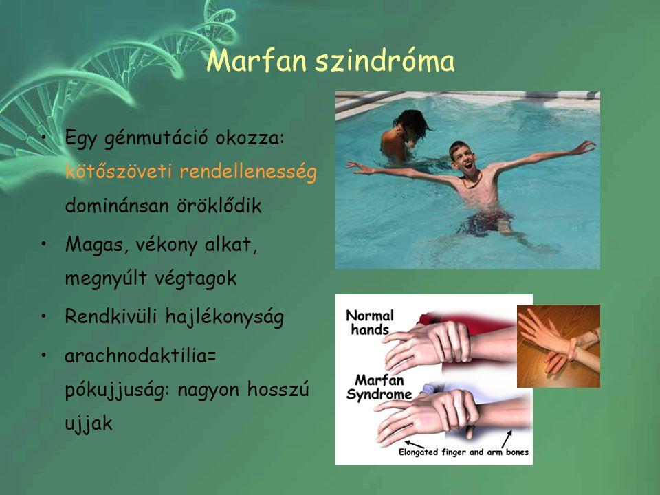 Marfan szindróma Egy génmutáció okozza: kötőszöveti rendellenesség dominánsan öröklődik Magas, vékony alkat, megnyúlt végtagok Rendkivüli hajlékonyság arachnodaktilia= pókujjuság: nagyon hosszú ujjak