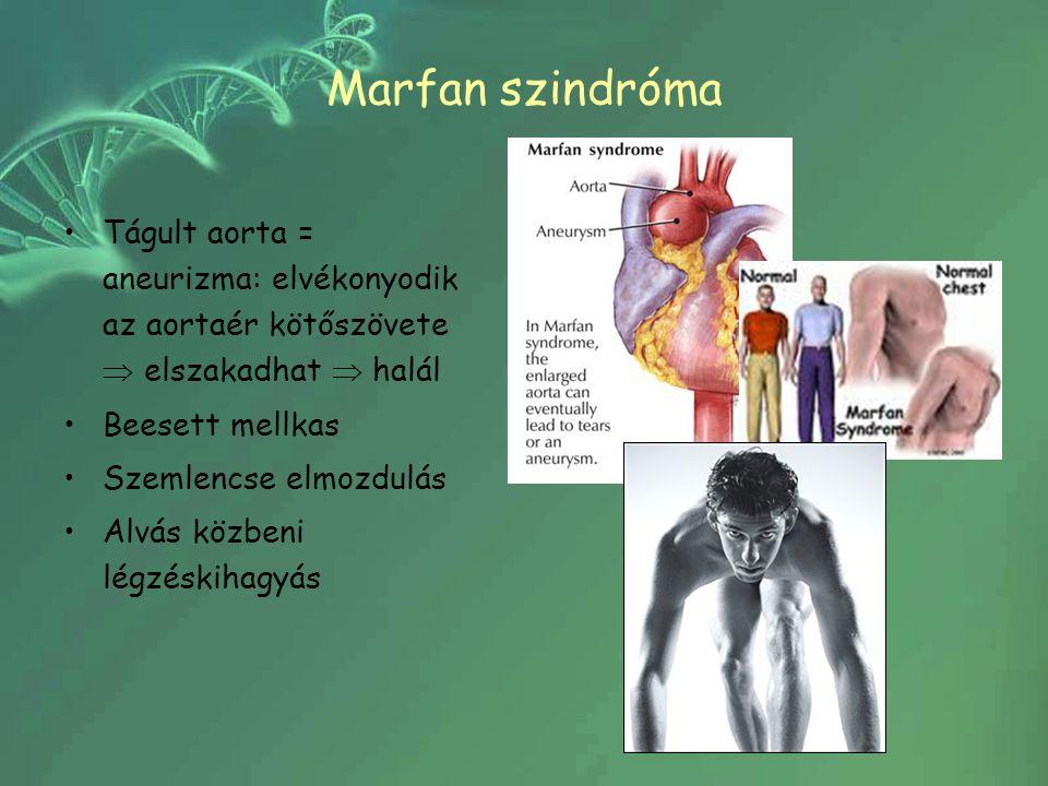 Marfan szindróma Tágult aorta = aneurizma: elvékonyodik az aortaér kötőszövete  elszakadhat  halál Beesett mellkas Szemlencse elmozdulás Alvás közbeni légzéskihagyás