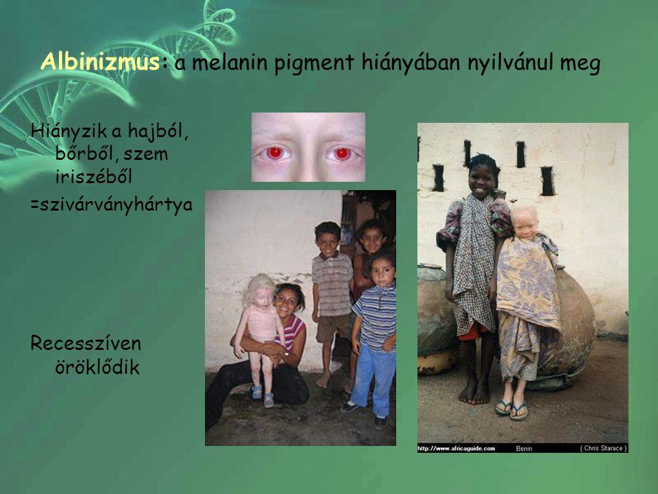 Albinizmus : a melanin pigment hiányában nyilvánul meg Hiányzik a hajból, bőrből, szem iriszéből =szivárványhártya Recesszíven öröklődik