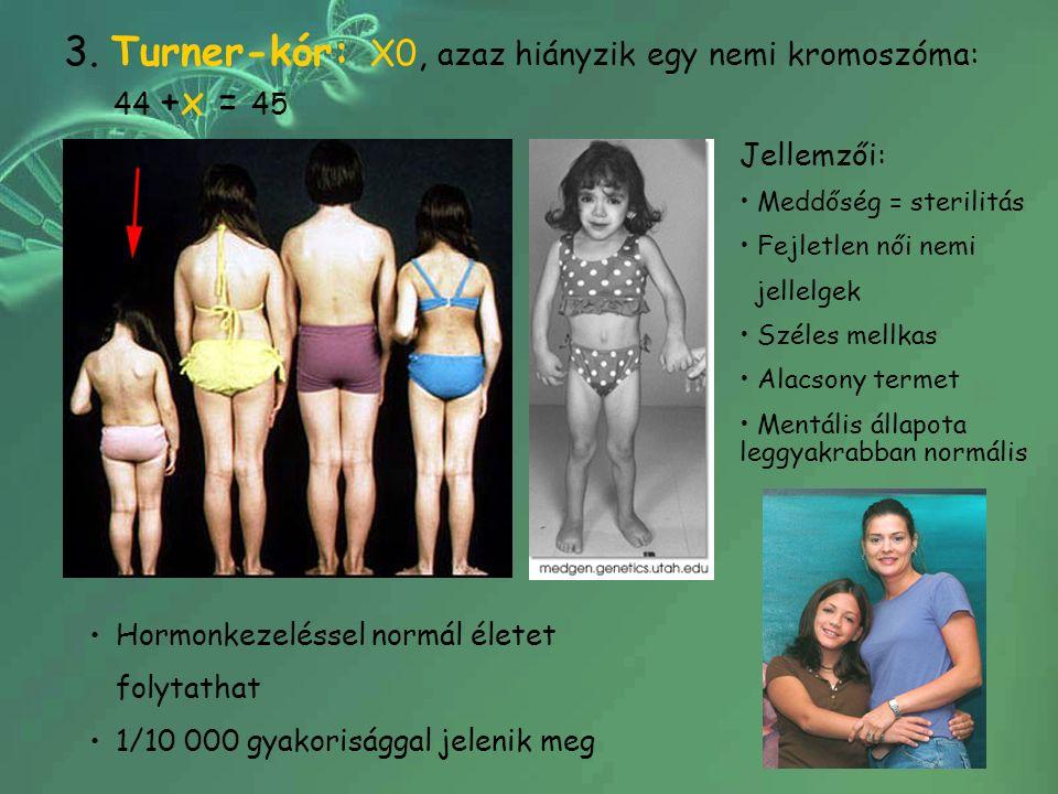 3. Turner-kór: X0, azaz hiányzik egy nemi kromoszóma: 44 +x = 45 Jellemzői: Meddőség = sterilitás Fejletlen női nemi jellelgek Széles mellkas Alacsony