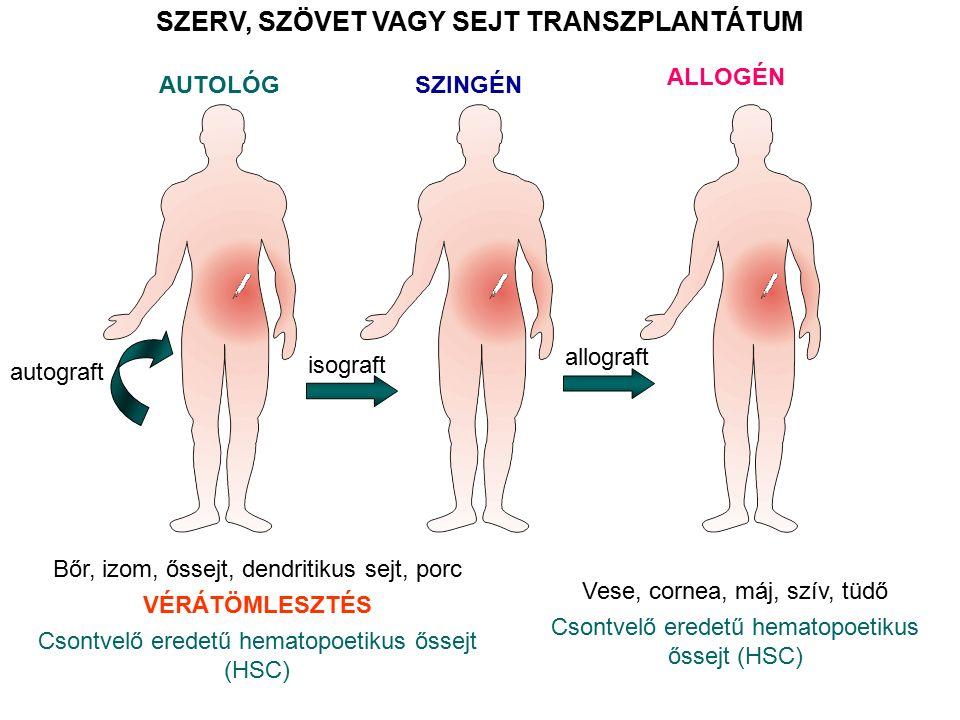 AUTOLÓG SZERV, SZÖVET VAGY SEJT TRANSZPLANTÁTUM Bőr, izom, őssejt, dendritikus sejt, porc VÉRÁTÖMLESZTÉS Csontvelő eredetű hematopoetikus őssejt (HSC) autograft isograft SZINGÉN ALLOGÉN Vese, cornea, máj, szív, tüdő Csontvelő eredetű hematopoetikus őssejt (HSC) allograft