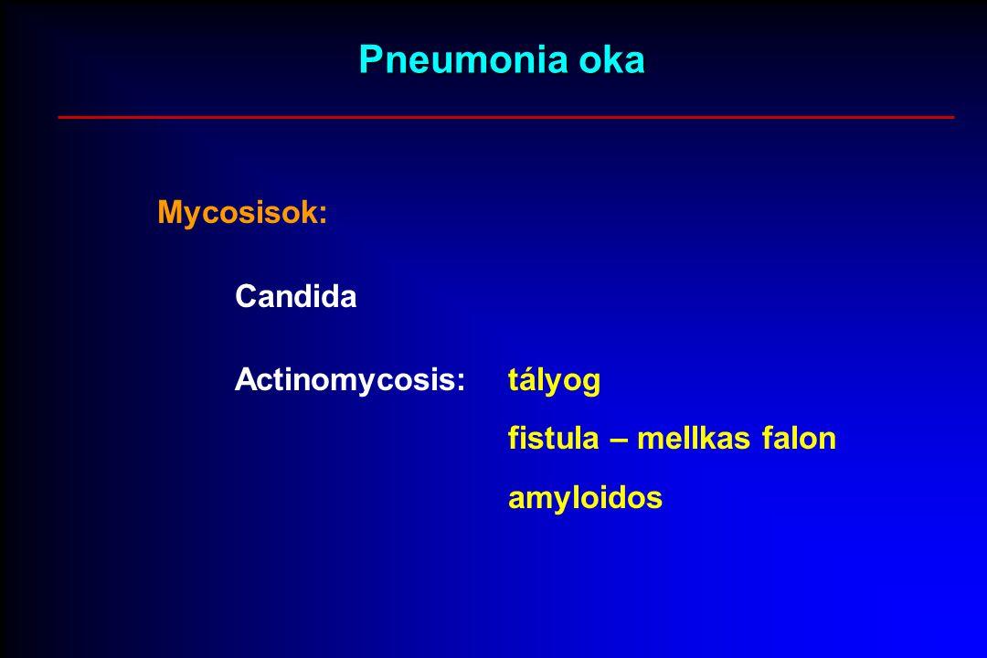 Pneumonia oka Mycosisok: Candida Actinomycosis:tályog fistula – mellkas falon amyloidos