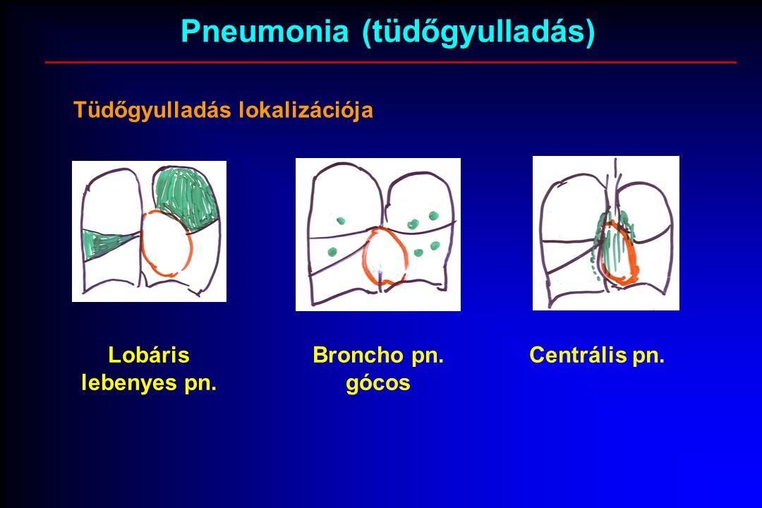 Pneumonia (tüdőgyulladás) Tüdőgyulladás lokalizációja Lobáris lebenyes pn.