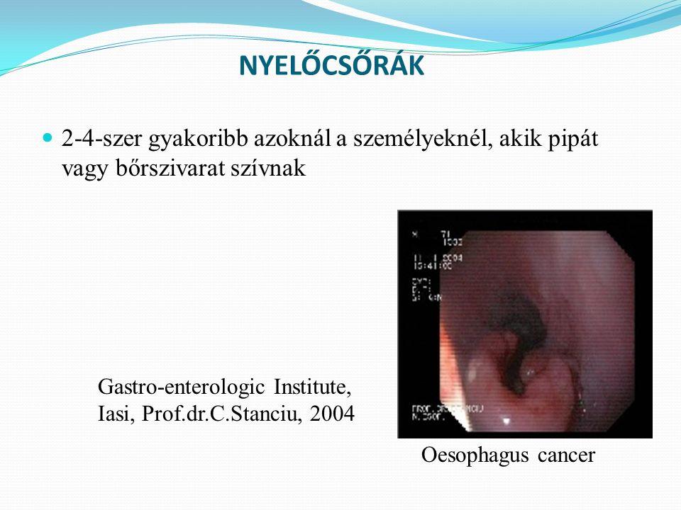 NYELŐCSŐRÁK 2-4-szer gyakoribb azoknál a személyeknél, akik pipát vagy bőrszivarat szívnak Gastro-enterologic Institute, Iasi, Prof.dr.C.Stanciu, 2004 Oesophagus cancer