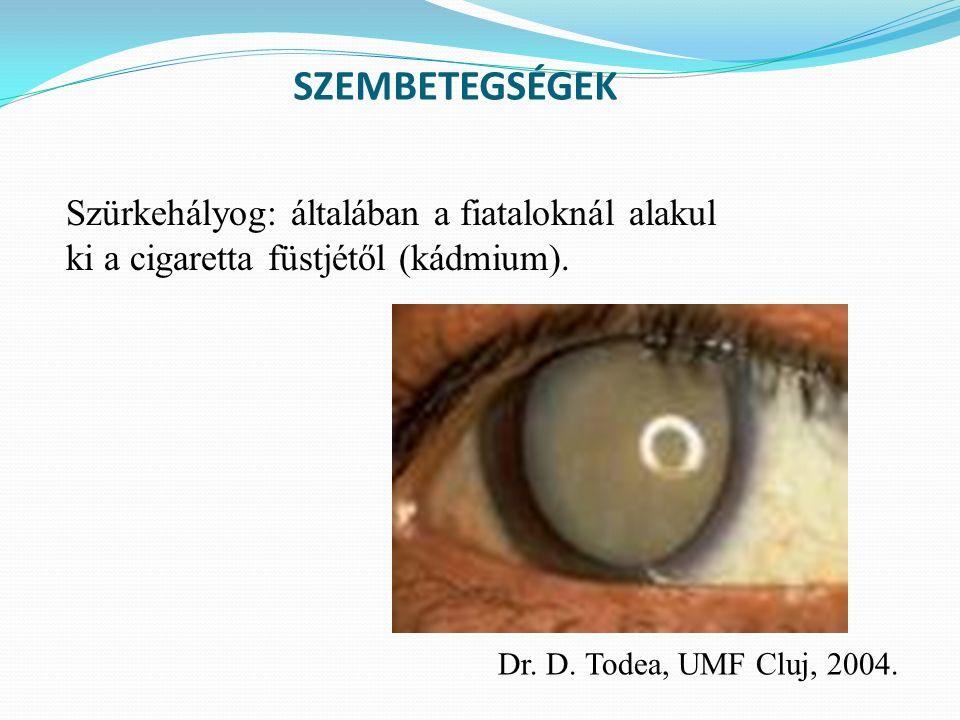 SZEMBETEGSÉGEK Szürkehályog: általában a fiataloknál alakul ki a cigaretta füstjétől (kádmium).