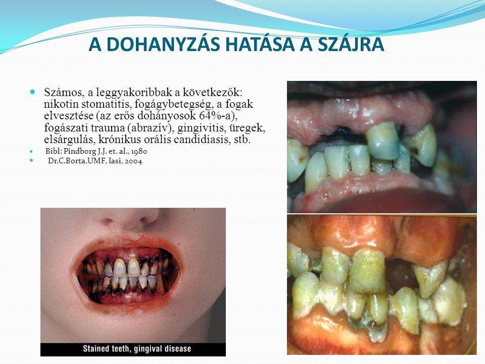 A DOHANYZÁS HATÁSA A SZÁJRA Számos, a leggyakoribbak a következők: nikotin stomatitis, fogágybetegség, a fogak elvesztése (az erős dohányosok 64%-a), fogászati trauma (abrazív), gingivitis, üregek, elsárgulás, krónikus orális candidiasis, stb.