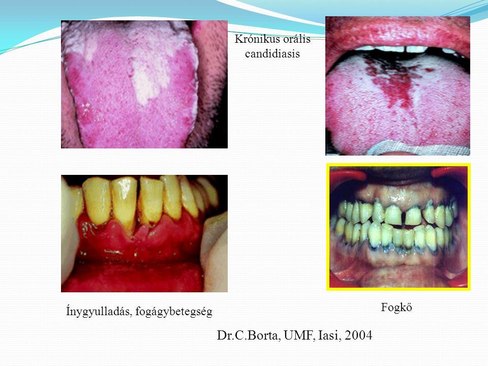 Krónikus orális candidiasis Ínygyulladás, fogágybetegség Fogkő Dr.C.Borta, UMF, Iasi, 2004