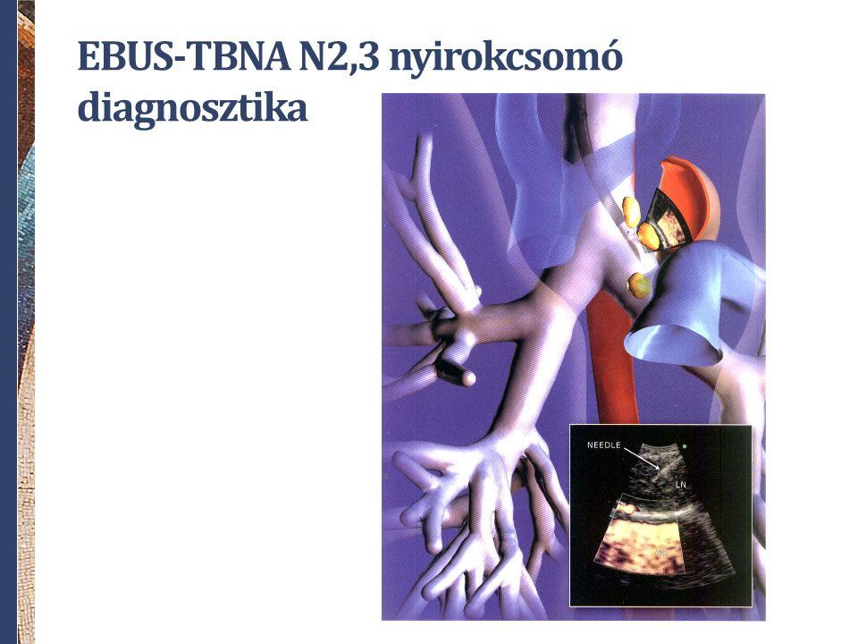 EBUS-TBNA N2,3 nyirokcsomó diagnosztika
