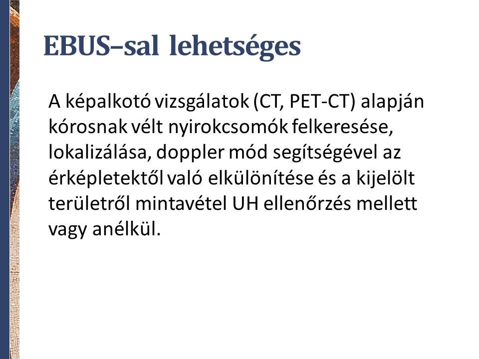 EBUS–sal lehetséges A képalkotó vizsgálatok (CT, PET-CT) alapján kórosnak vélt nyirokcsomók felkeresése, lokalizálása, doppler mód segítségével az érképletektől való elkülönítése és a kijelölt területről mintavétel UH ellenőrzés mellett vagy anélkül.