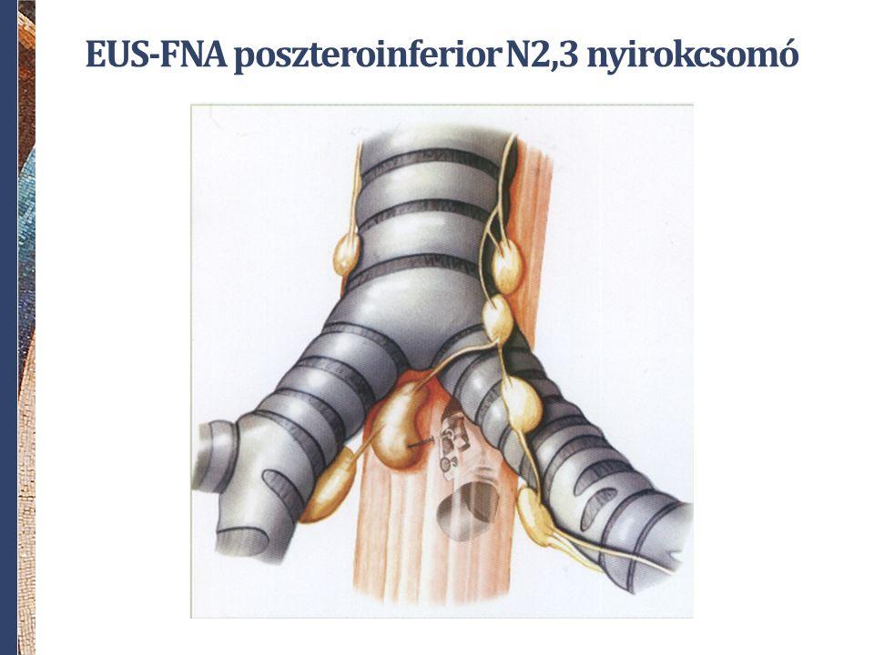 EUS-FNA poszteroinferior N2,3 nyirokcsomó
