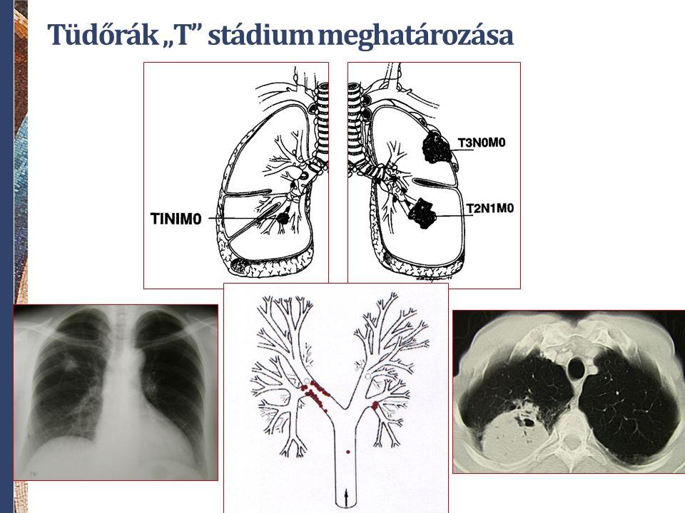 """Tüdőrák """"T stádium meghatározása"""