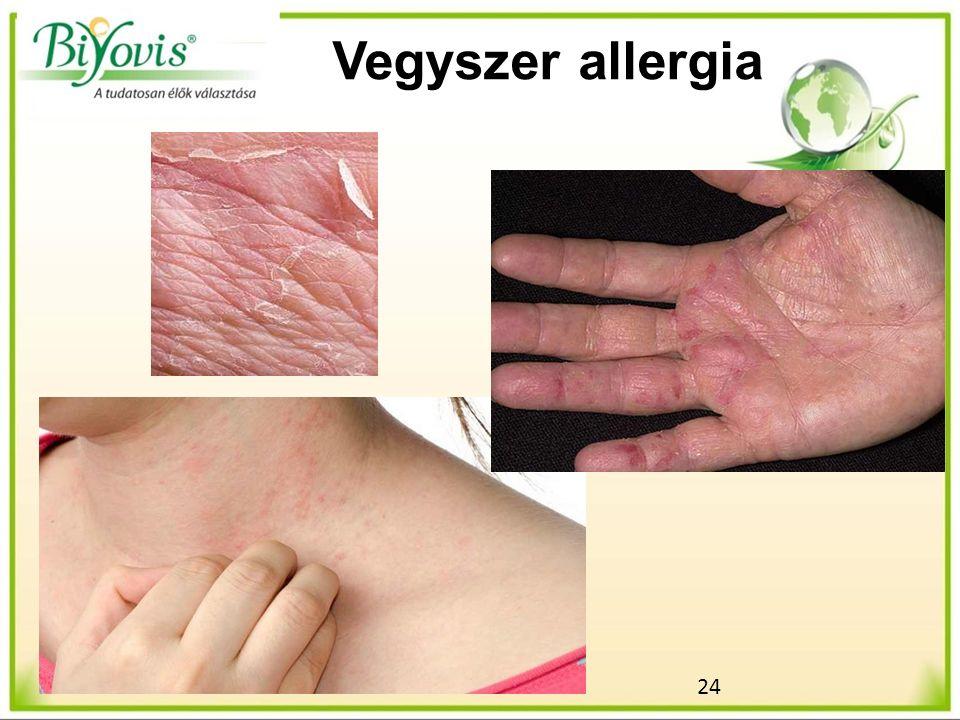 24 Vegyszer allergia