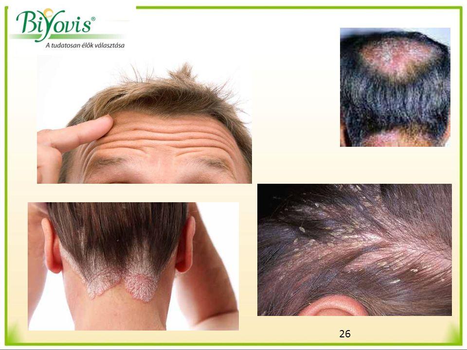 27 Egészségesebb fejbőr és hajápolás