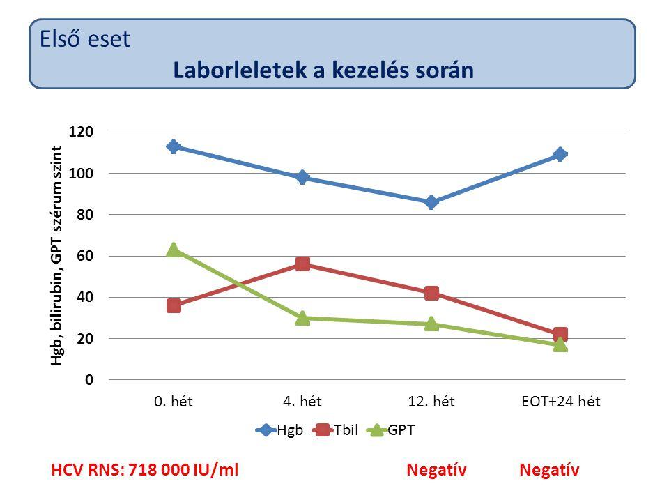 HCV RNS: 718 000 IU/ml NegatívNegatív Első eset Laborleletek a kezelés során