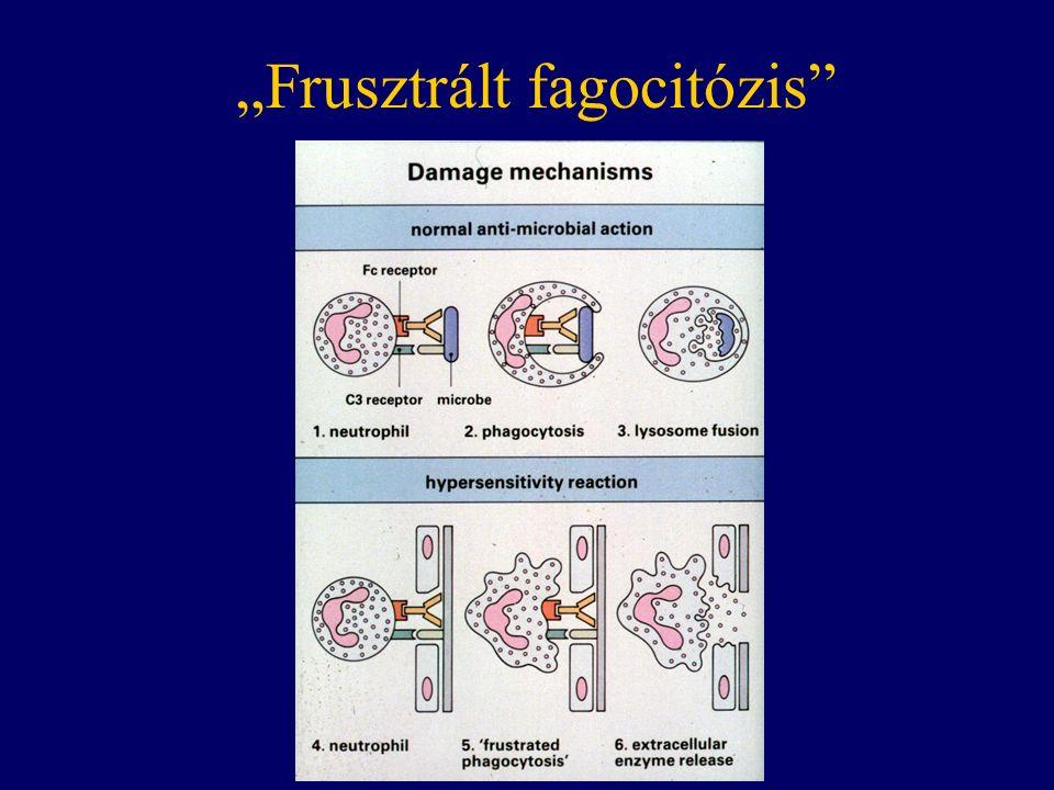 """""""Frusztrált fagocitózis"""""""
