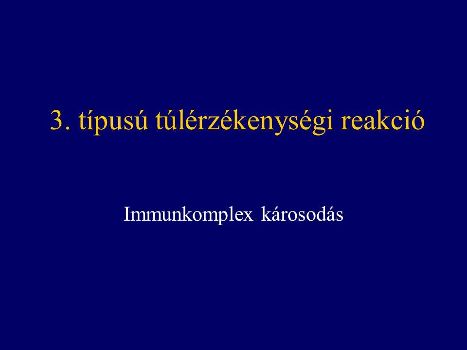 3. típusú túlérzékenységi reakció Immunkomplex károsodás
