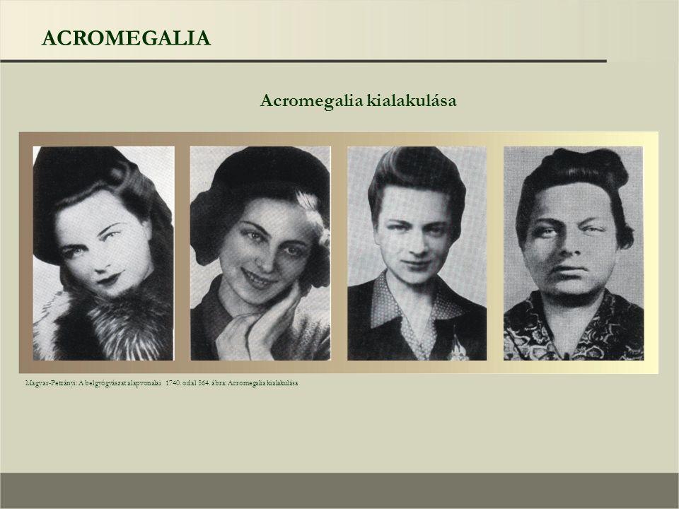 ACROMEGALIA Acromegalia kialakulása Magyar-Petrányi: A belgyógyászat alapvonalai 1740. odal 564. ábra: Acromegalia kialakulása