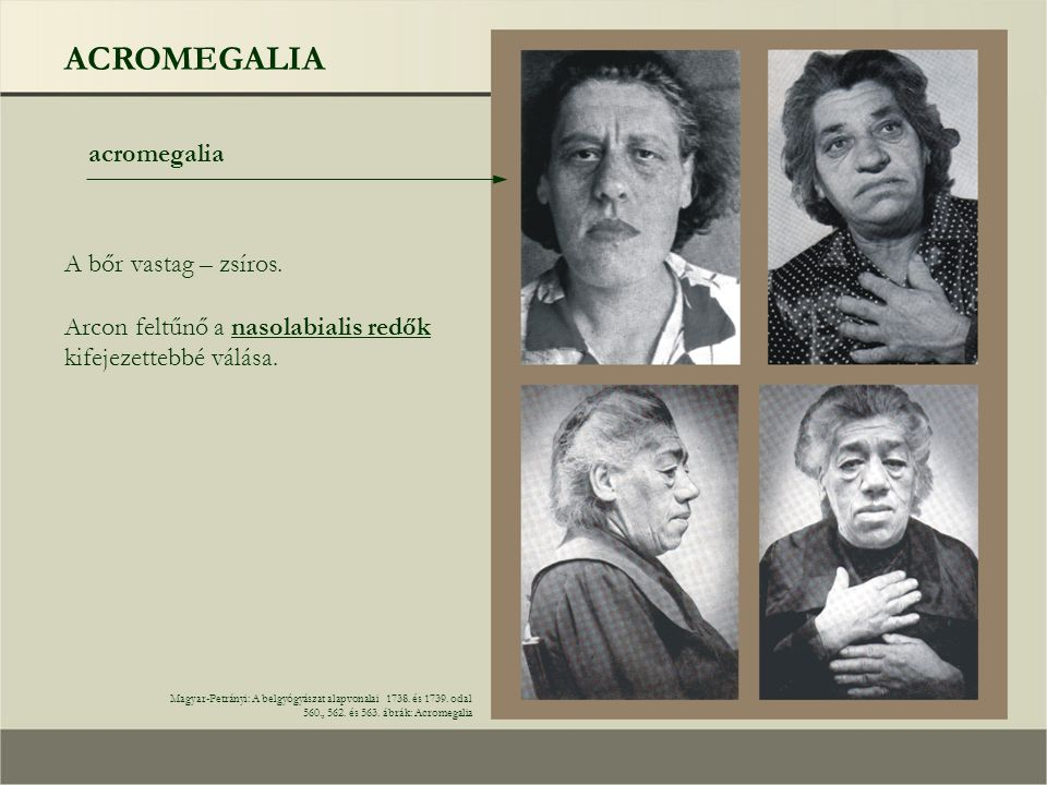 ACROMEGALIA acromegalia Magyar-Petrányi: A belgyógyászat alapvonalai 1738. és 1739. odal 560., 562. és 563. ábrák: Acromegalia A bőr vastag – zsíros.