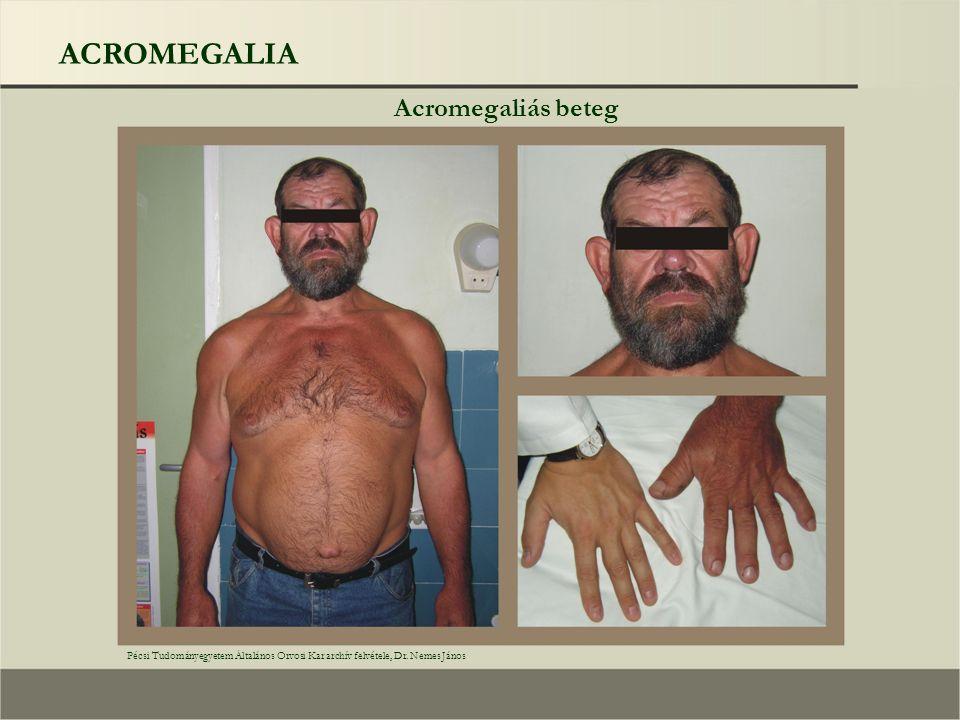 ACROMEGALIA Acromegaliás beteg Pécsi Tudományegyetem Általános Orvosi Kar archív felvétele, Dr. Nemes János