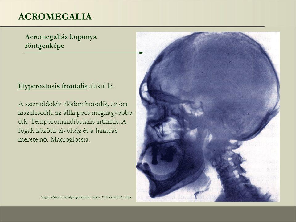 ACROMEGALIA Acromegaliás koponya röntgenképe Magyar-Petrányi: A belgyógyászat alapvonalai 1738. és odal 561. ábra Hyperostosis frontalis alakul ki. A