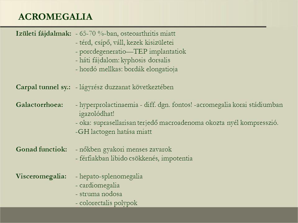 ACROMEGALIA Izületi fájdalmak:- 65-70 %-ban, osteoarthritis miatt - térd, csípő, váll, kezek kisizületei - porcdegeneratio—TEP implantatiok - háti fájdalom: kyphosis dorsalis - hordó mellkas: bordák elongatioja Carpal tunnel sy.:- lágyrész duzzanat következtében Galactorrhoea:- hyperprolactinaemia - diff.