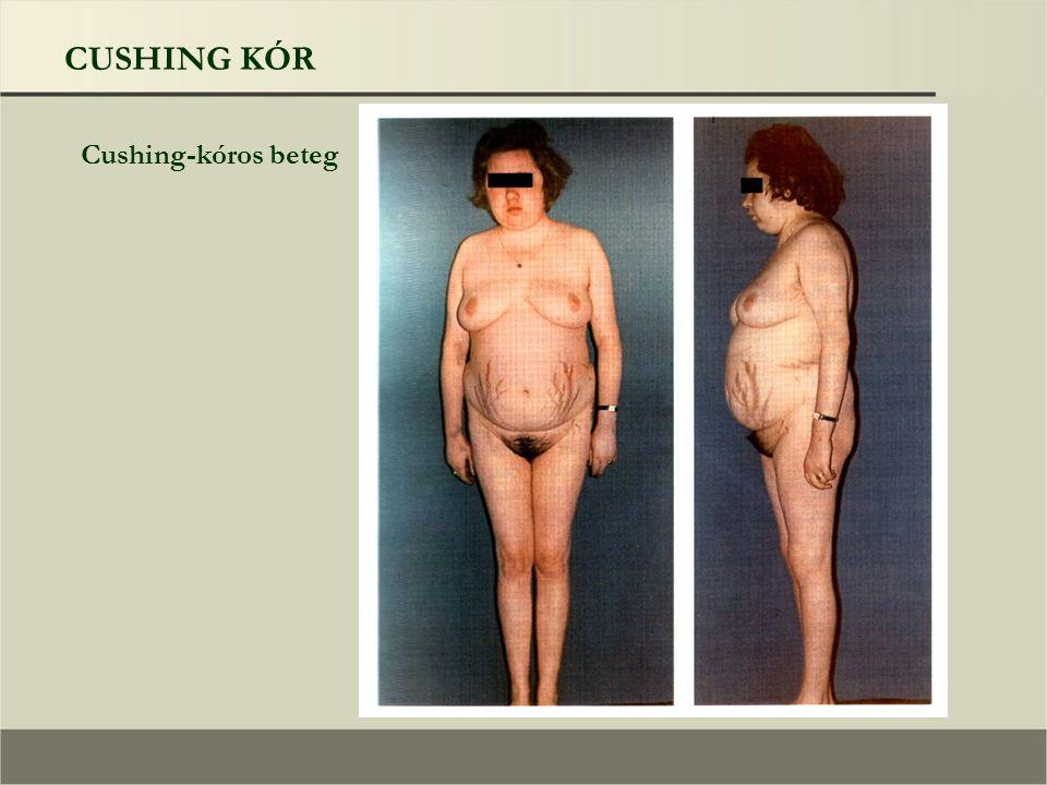 CUSHING KÓR Cushing-kóros beteg