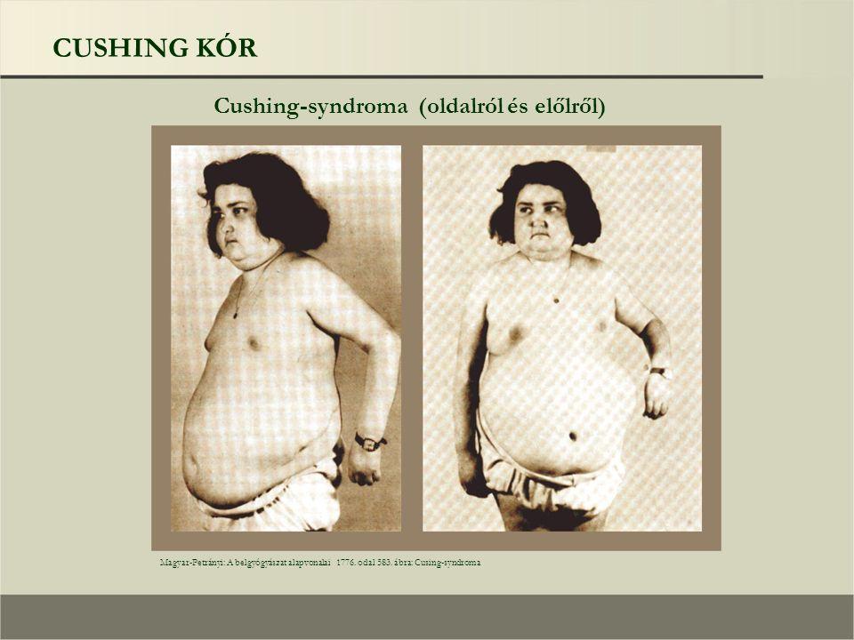 CUSHING KÓR Cushing-syndroma (oldalról és előlről) Magyar-Petrányi: A belgyógyászat alapvonalai 1776. odal 583. ábra: Cusing-syndroma