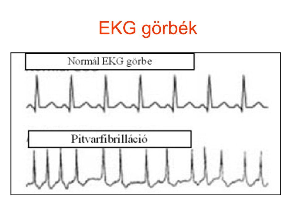 EKG görbék