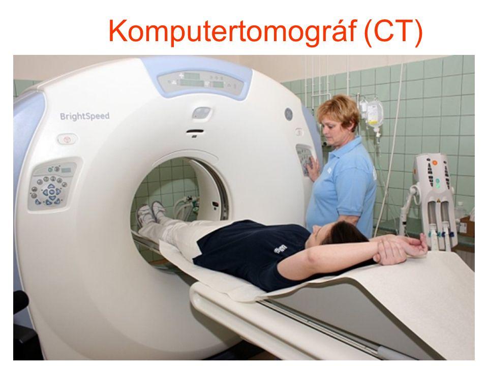 Agyvelő CT-felvétel