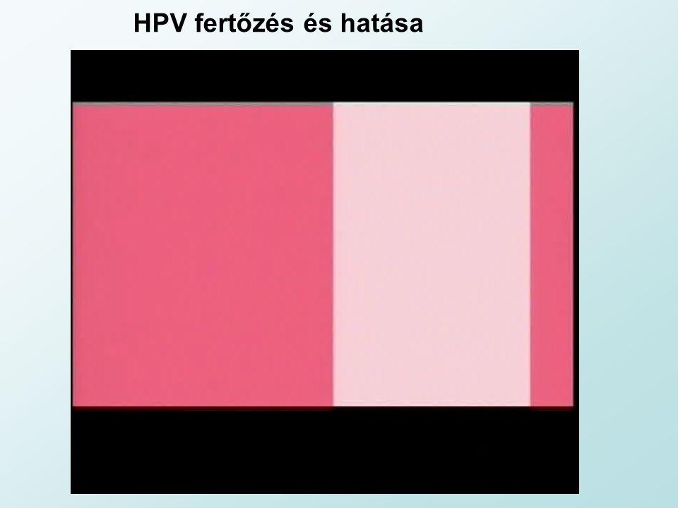HPV fertőzés és hatása