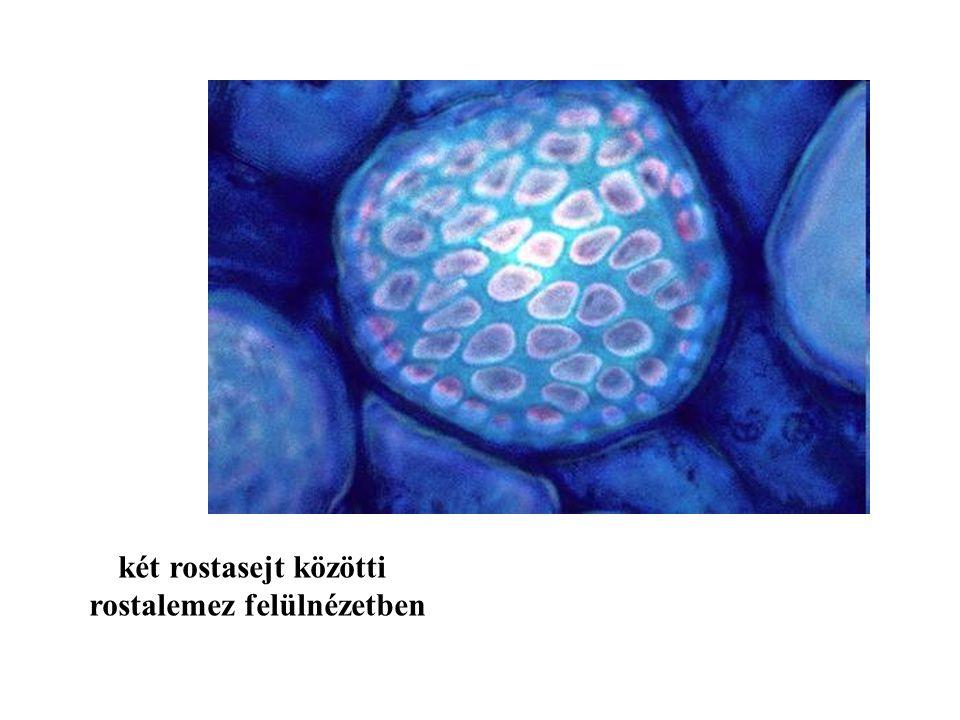 két rostasejt közötti rostalemez felülnézetben