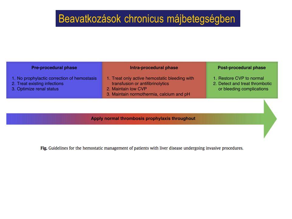 Beavatkozások chronicus májbetegségben