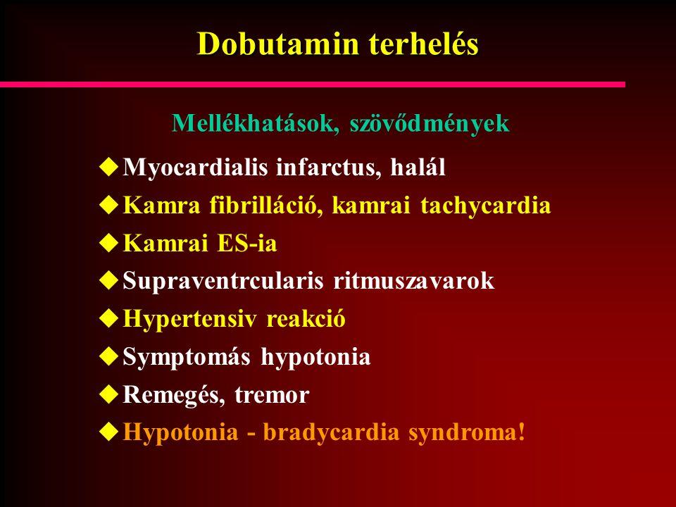 Dobutamin terhelés  Myocardialis infarctus, halál  Kamra fibrilláció, kamrai tachycardia  Kamrai ES-ia  Supraventrcularis ritmuszavarok  Hyperten