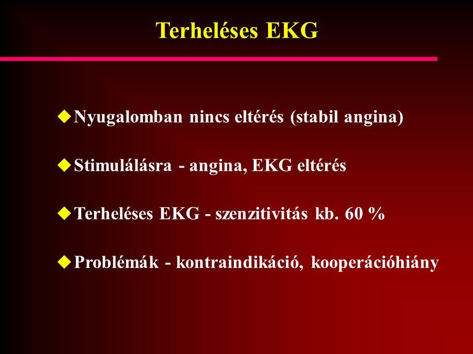 Terheléses EKG  Nyugalomban nincs eltérés (stabil angina)  Stimulálásra - angina, EKG eltérés  Terheléses EKG - szenzitivitás kb. 60 %  Problémák