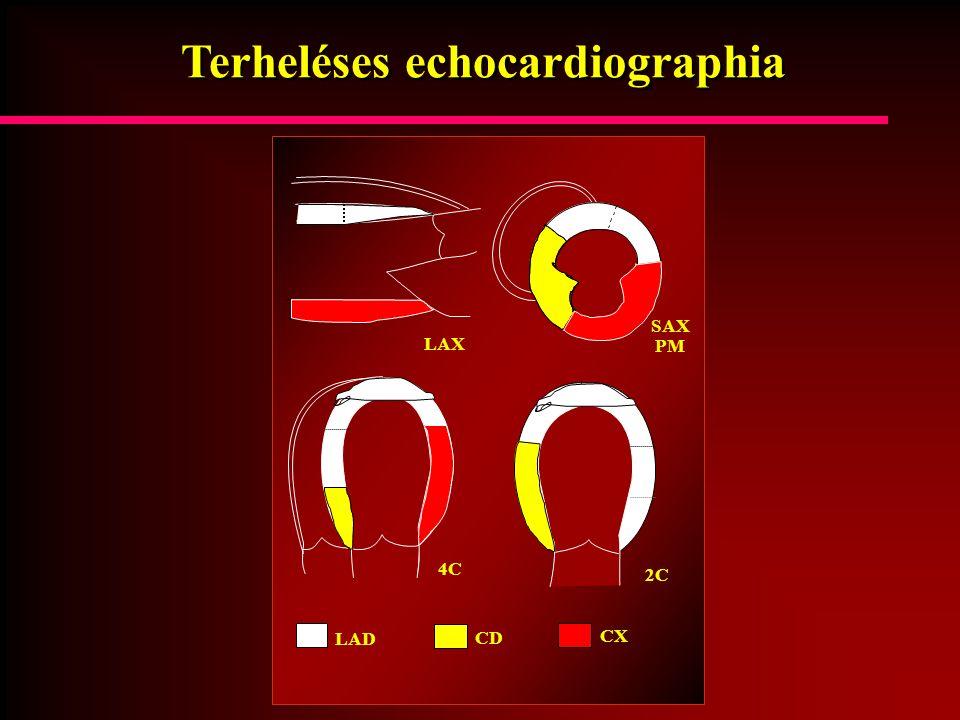 Terheléses echocardiographia LAD CD CX SAX PM 4C 2C LAX