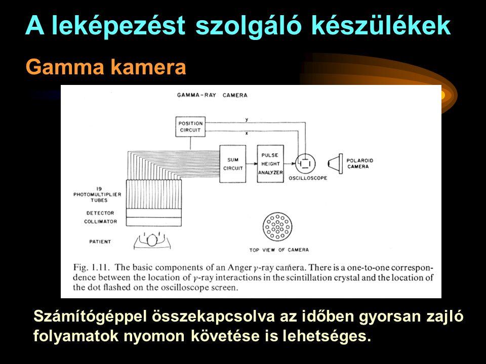 A leképezést szolgáló készülékek Gamma kamera Számítógéppel összekapcsolva az időben gyorsan zajló folyamatok nyomon követése is lehetséges.