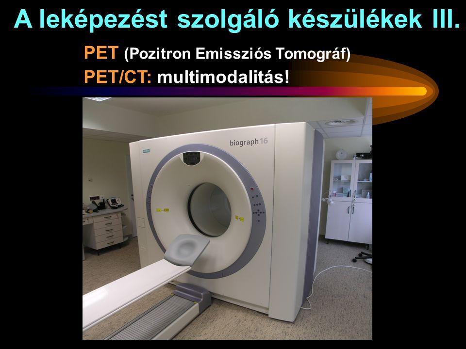 A leképezést szolgáló készülékek III. PET (Pozitron Emissziós Tomográf) PET/CT: multimodalitás!