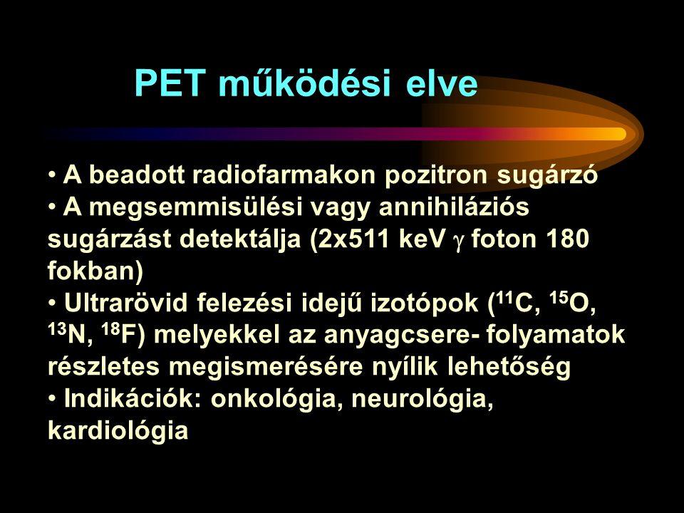 A beadott radiofarmakon pozitron sugárzó A megsemmisülési vagy annihiláziós sugárzást detektálja (2x511 keV  foton 180 fokban) Ultrarövid felezési idejű izotópok ( 11 C, 15 O, 13 N, 18 F) melyekkel az anyagcsere- folyamatok részletes megismerésére nyílik lehetőség Indikációk: onkológia, neurológia, kardiológia PET működési elve