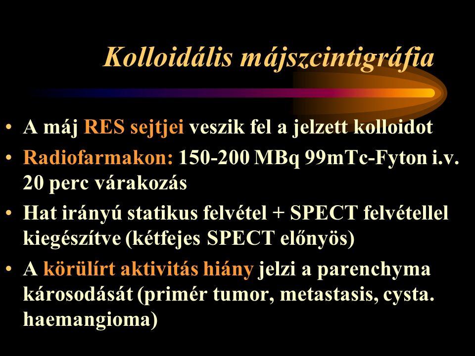 Kolloidális májszcintigráfia A máj RES sejtjei veszik fel a jelzett kolloidot Radiofarmakon: 150-200 MBq 99mTc-Fyton i.v.