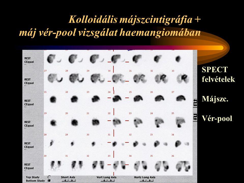 Kolloidális májszcintigráfia + máj vér-pool vizsgálat haemangiomában SPECT felvételek Májszc.