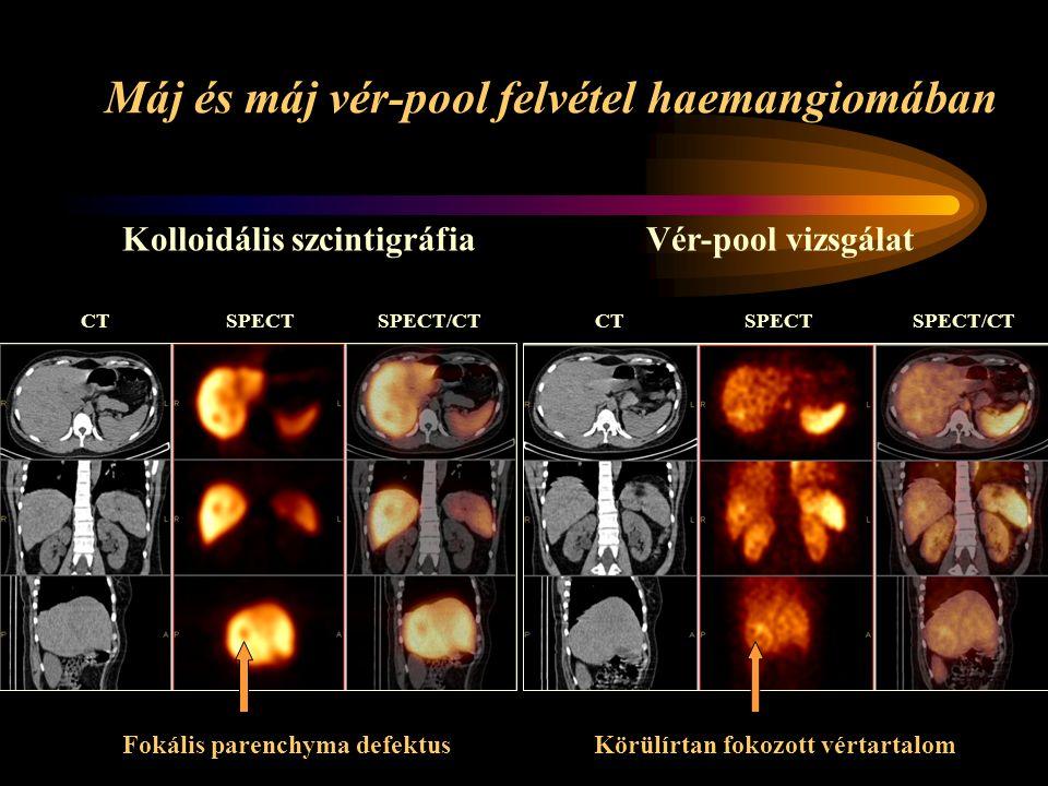 Máj és máj vér-pool felvétel haemangiomában CT SPECT SPECT/CT Fokális parenchyma defektus Körülírtan fokozott vértartalom Kolloidális szcintigráfiaVér-pool vizsgálat