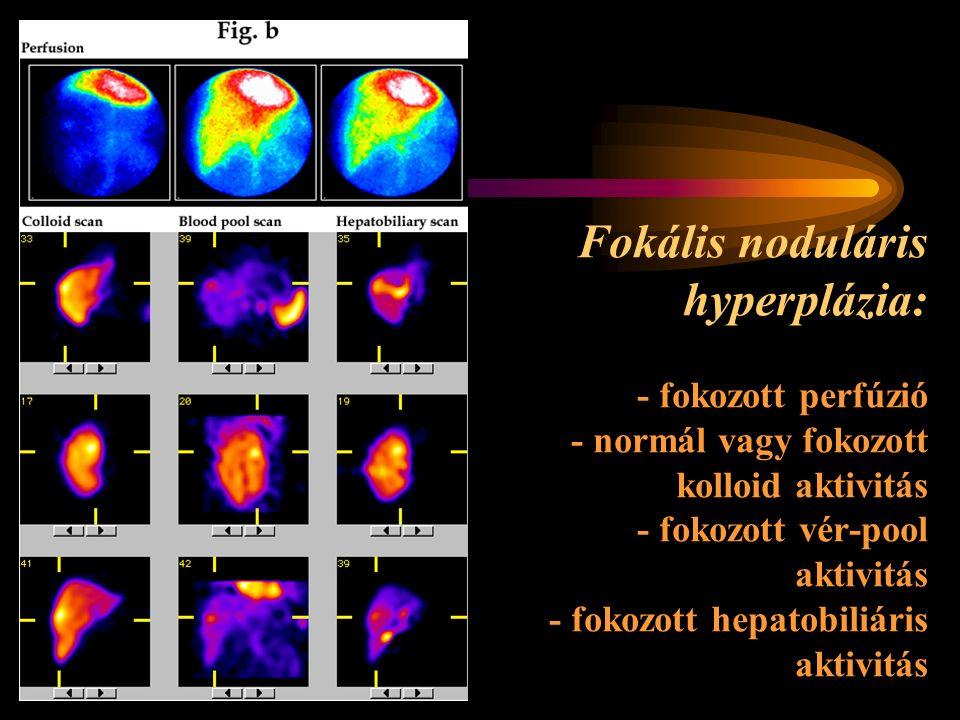 Fokális noduláris hyperplázia: - fokozott perfúzió - normál vagy fokozott kolloid aktivitás - fokozott vér-pool aktivitás - fokozott hepatobiliáris aktivitás