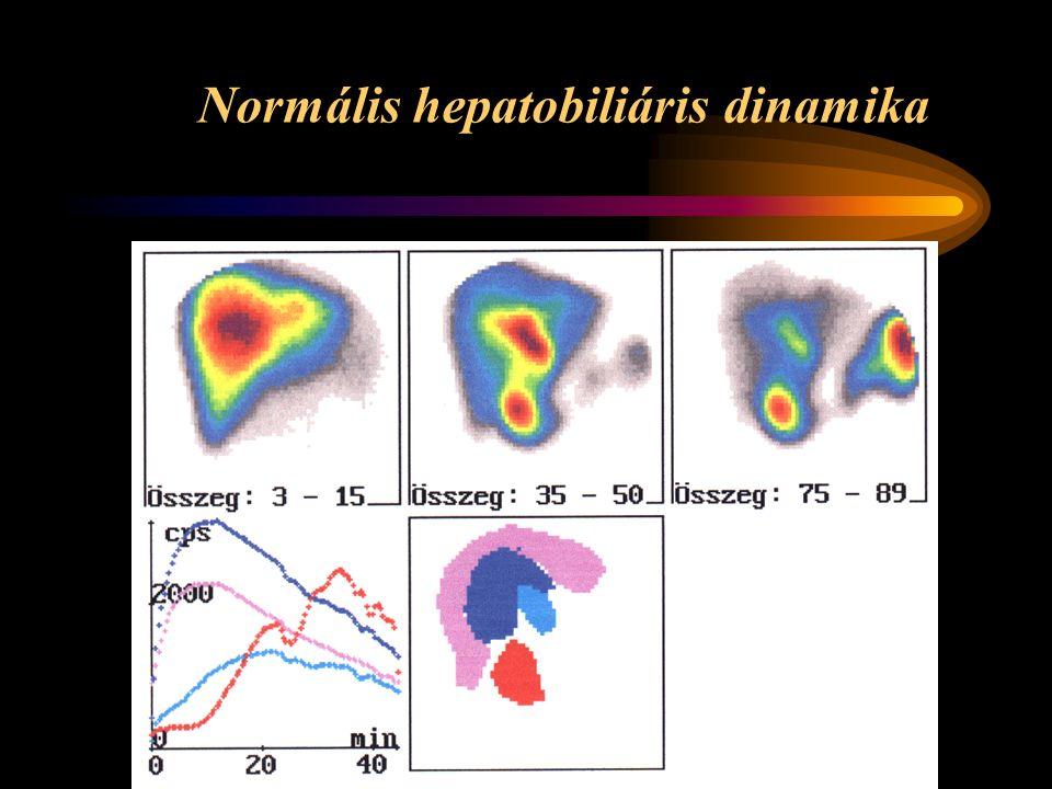 Normális hepatobiliáris dinamika