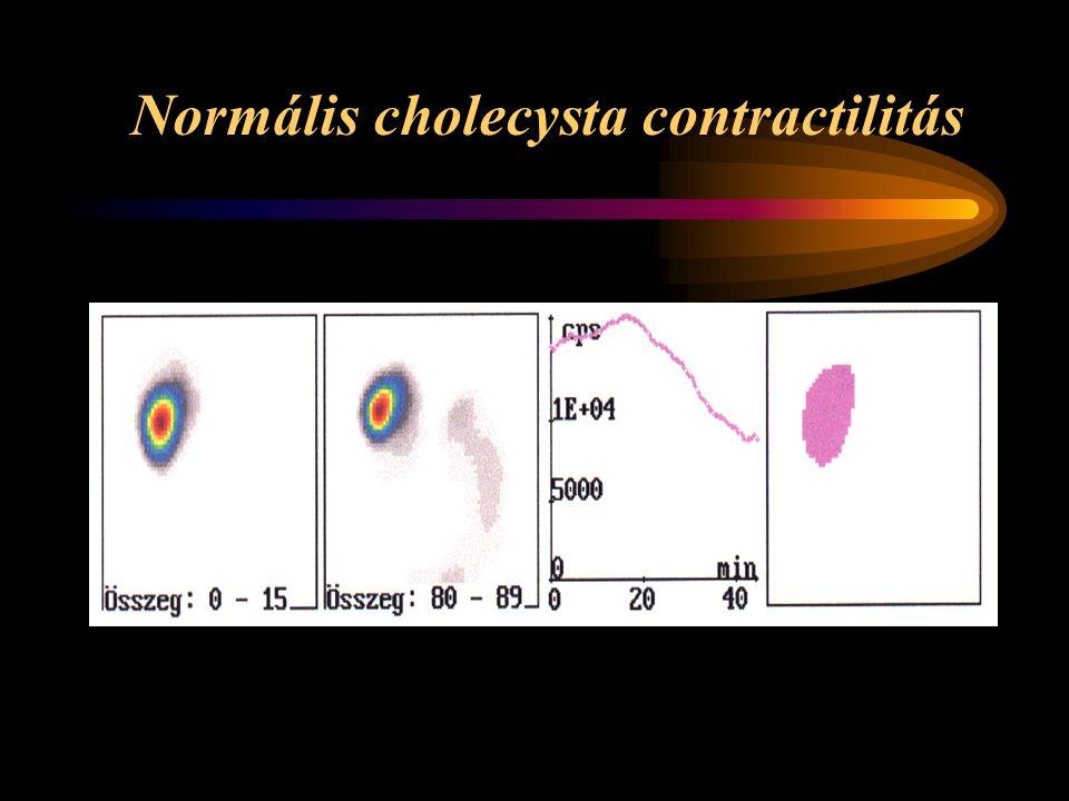 Normális cholecysta contractilitás